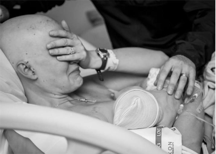 meme kanseri olan anne
