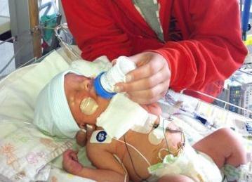 bebek tümörü
