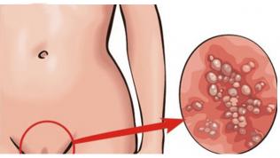 Genital Siğil (HPV) Nedir?